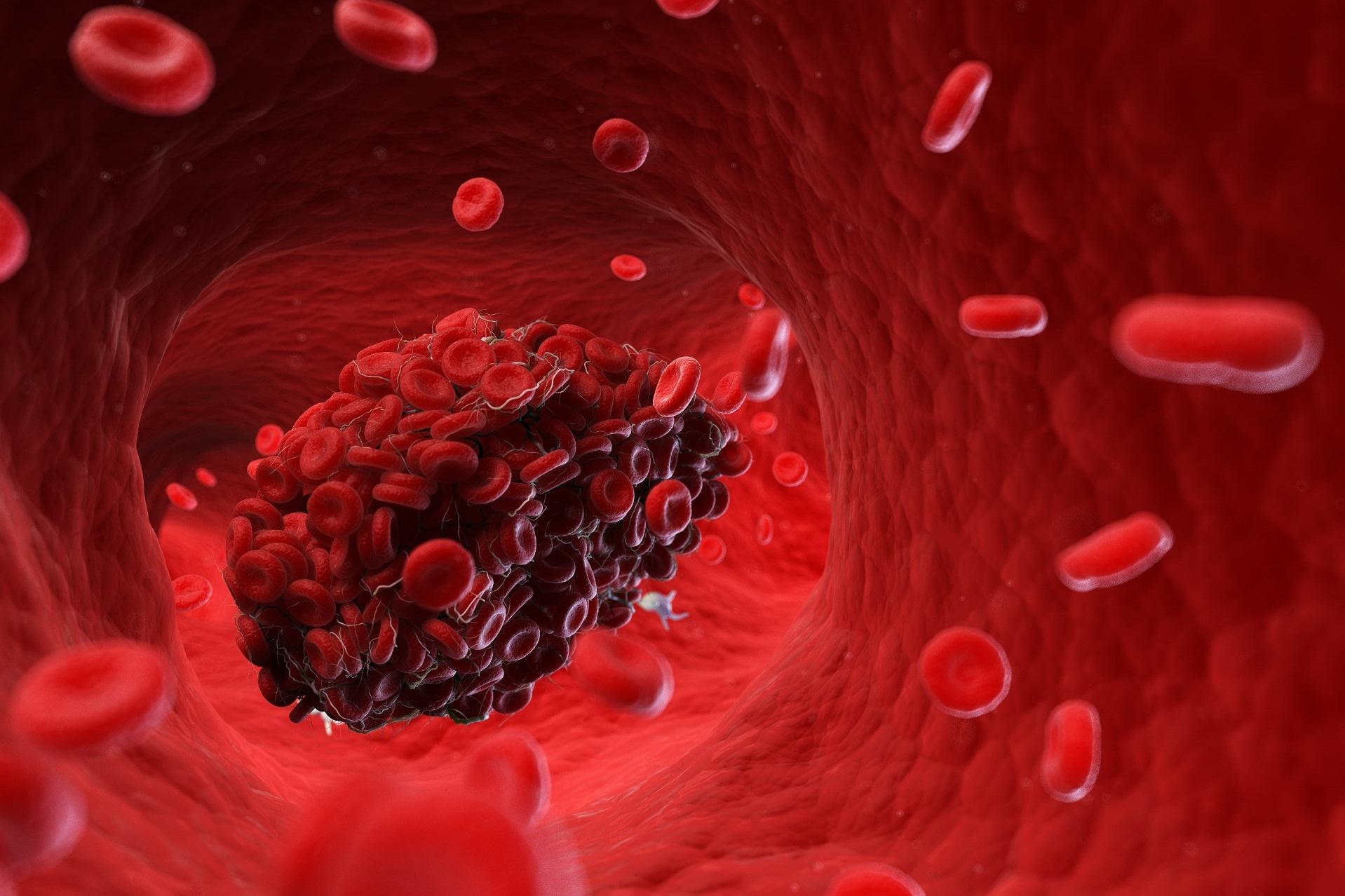 Deficiência da proteína C trombose venosa profunda TVP