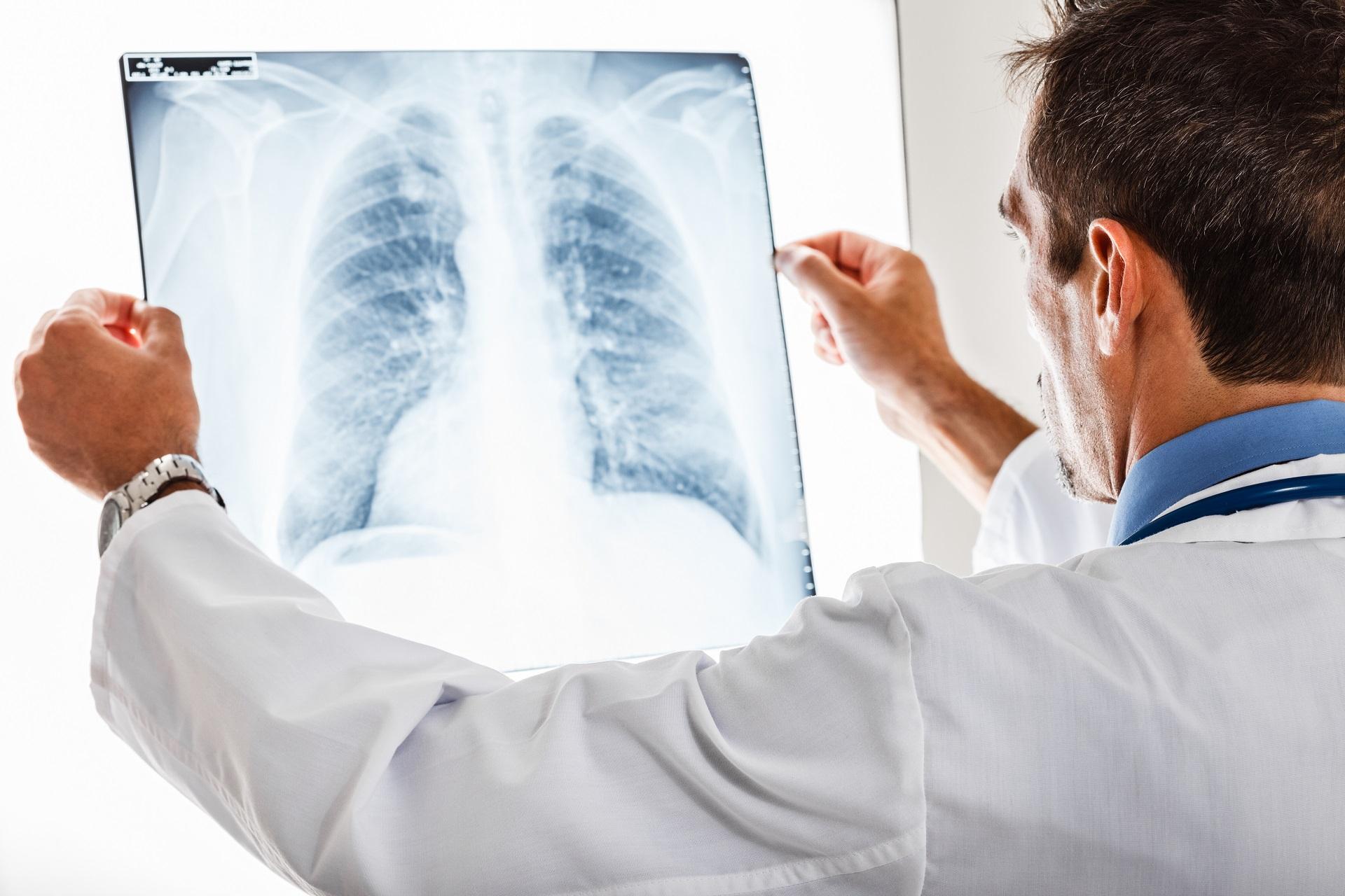 Síndrome de Kartagener, discinesia ciliar primária:infeções respiratórias, inversão dos órgãos, situs inversus totalis e dificuldade para engravidar