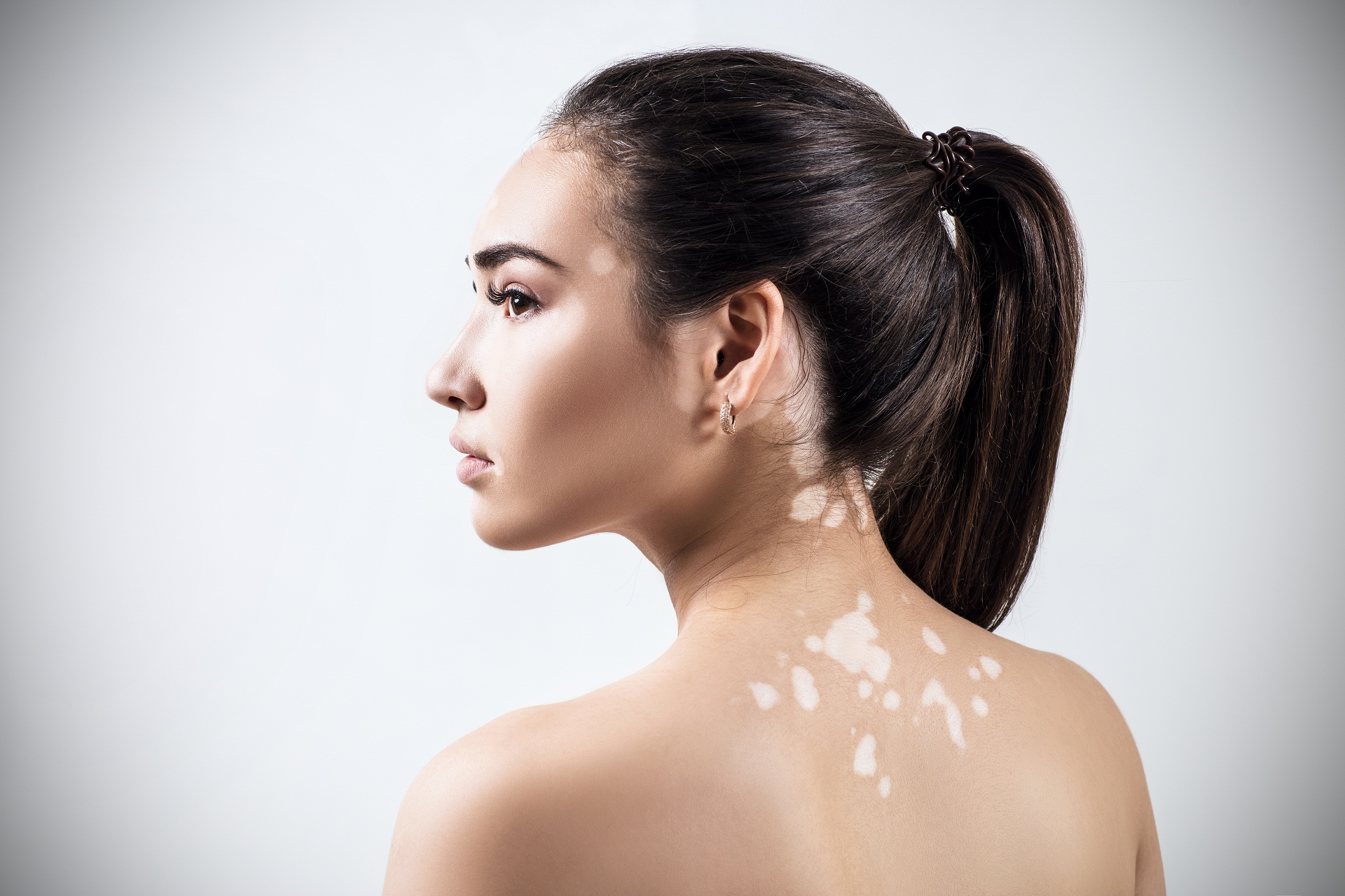 Manchas brancas pelo corpo: pode ser esclerose tuberosa