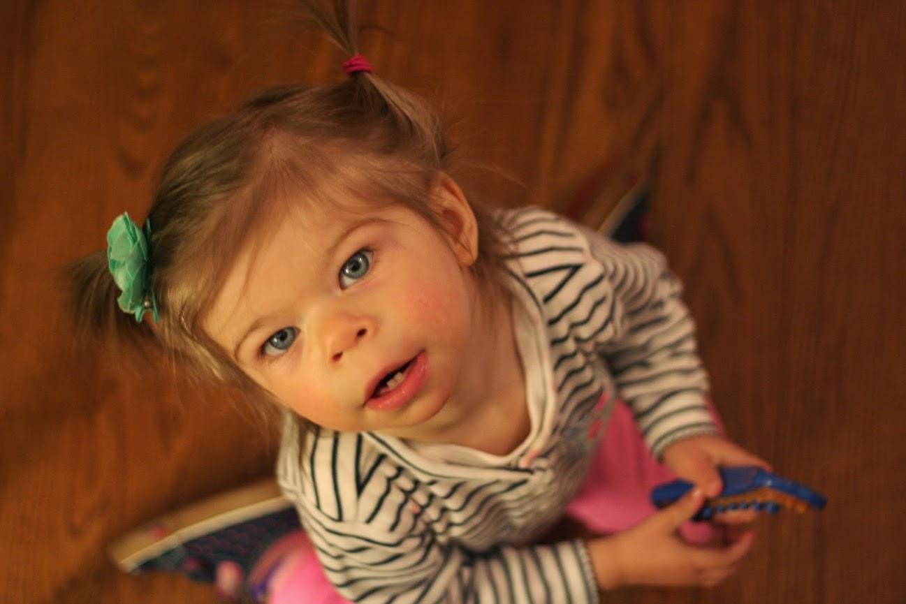 Sindrome de Williams: deficiência intelectual e personalidade amigável